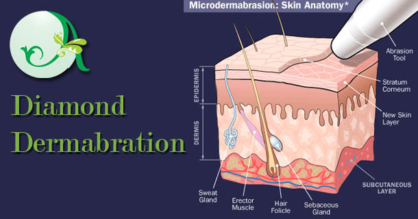 diamond dermabration