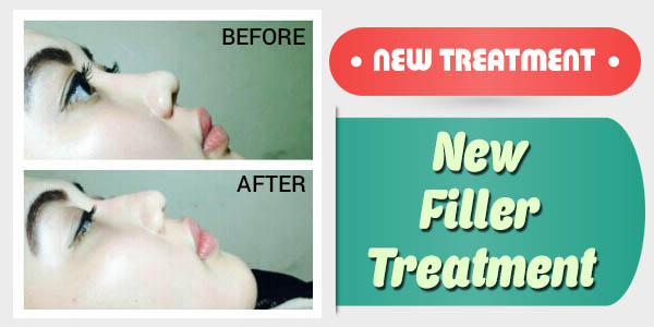 New  Filler  Treatment_600x300px