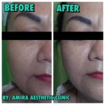 New Threadlift treatment 5