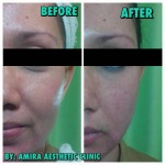 New Threadlift treatment 7