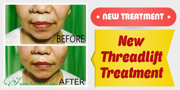 New Threadlift treatment_600x300px