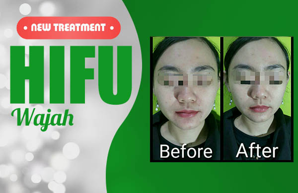 HIFU treatment_600x389px
