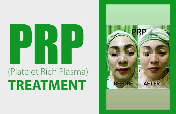 PRP treatment_600x389px